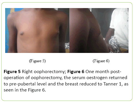 medical-case-reports-Right-oophorectomy